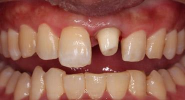 先临三维DS-EX齿科3D扫描仪助力完成牙外伤当日修复